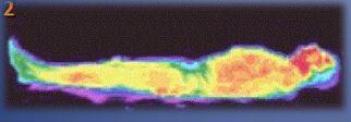 Prohřátí s Amethyst BioMat po 10 minutách